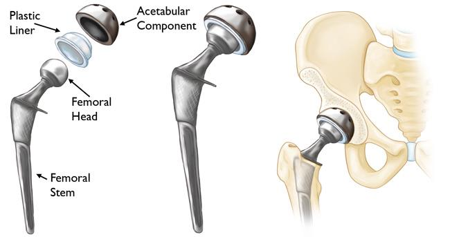 Total hip replacement surgery in jaipur