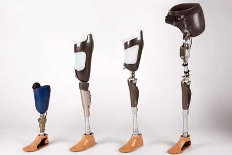 best artificial limbs in india