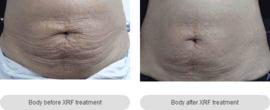 Body Contouring Melbourne - anti-aging Cosmetic & Laser