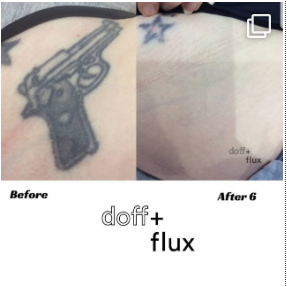 Tattoo Removal - Doff&Flux Tattoo Removal Melbourne