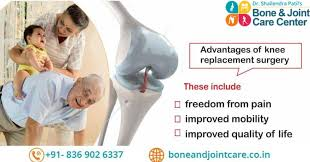 Are You Doing Knee Replacement Surgery Planning In Mumbai?