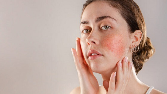 The basics of Acne & it's types
