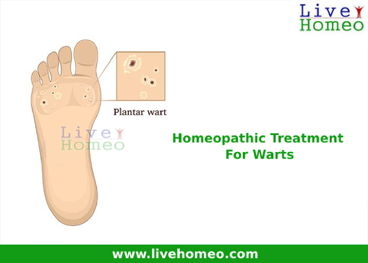Effective Homeopathy Treatment For Warts