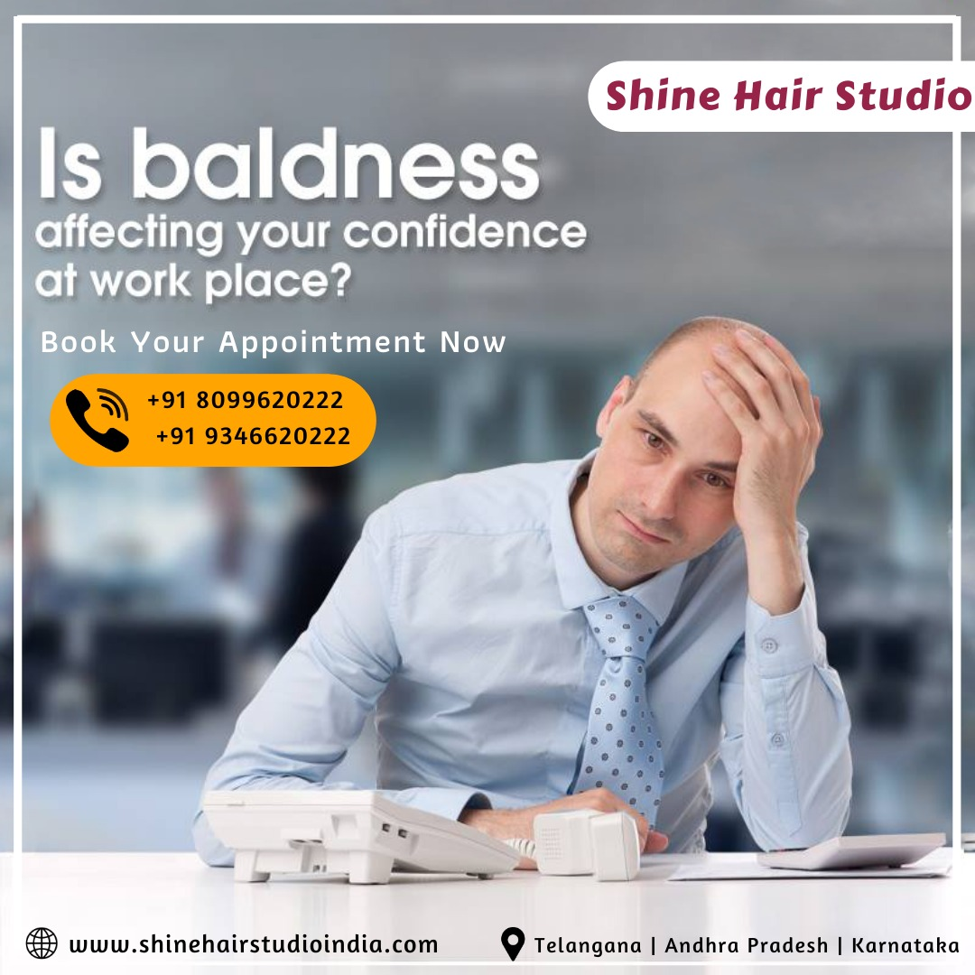 Shine Hair Studio | Hair Replacement | Wig Dealers |Hair Extensions | Wig